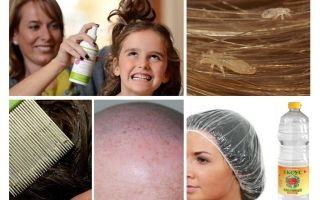Fighting pediculosis in a child and adult