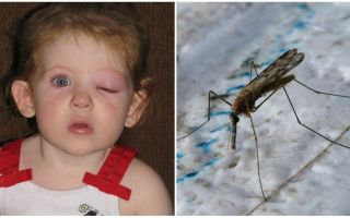 What to do if a child has a puffy eye after a mosquito bite
