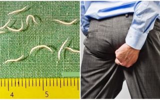 Symptoms and treatment of pinworms in adults