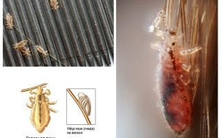 Incubation period of lice and nits in humans