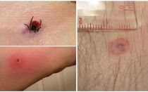 Symptoms and treatment of an encephalitic tick bite in humans