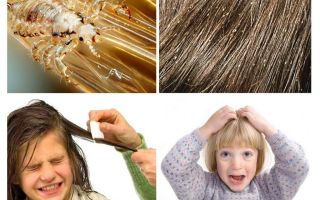 What to do if a child has lice