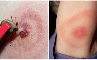 What is Lyme disease, its symptoms, treatment and photo