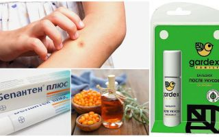 Shop and folk remedies for mosquito bites and blackflies