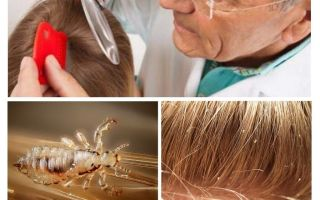 Prevention of pediculosis in school