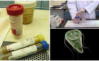 How to properly pass feces on Giardia, methods of analysis