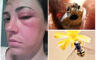 What if a bee bit into the eye and it swelled