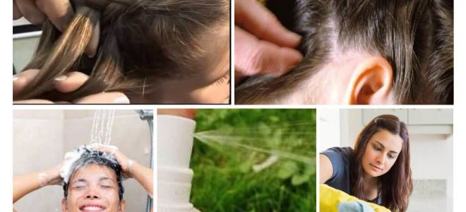 Means for preventing lice in children