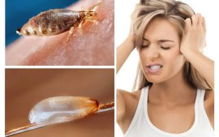 What is pediculosis?