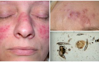 Subcutaneous Tick on the face