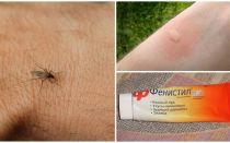 How and how to remove the itch from mosquito bites in a child and an adult