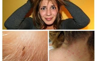 Prevention of pediculosis and scabies