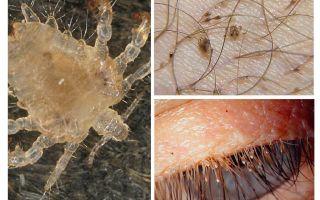 Pubic Lice Symptoms and Treatment