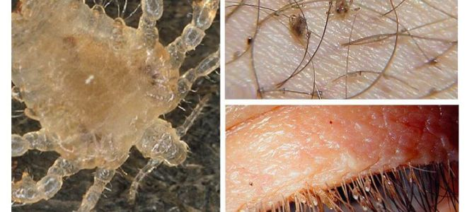 Pubic Lice Symptoms and Treatment