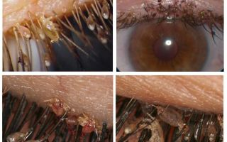 Ciliated lice and nits