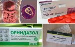 The best drugs for the treatment of Giardia in adults