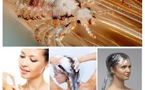 Pediculosis shampoos for children and adults