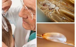 Examination of the patient for pediculosis in the department