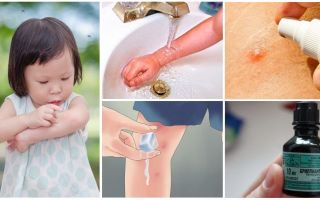 How and what to treat mosquito bites in a child