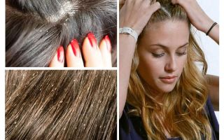 How to distinguish lice and nits from dandruff
