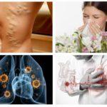 Alerģija, sirds slimības, tuberkuloze