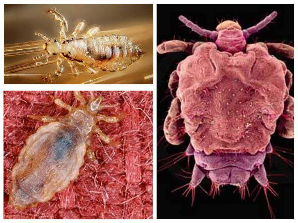 Types of lice