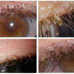 Lice on eyelashes