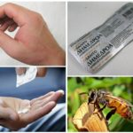 Bite allergy treatment