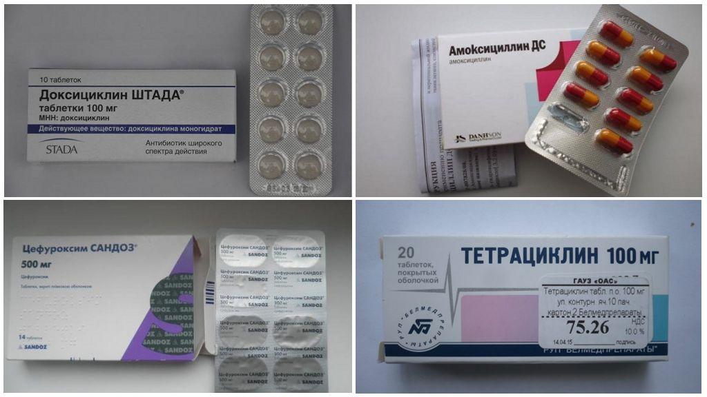 אנטיביוטיקה בטבליות לבורליוזיס