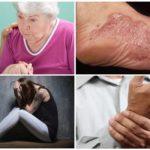 תסמינים של שלב כרוני של בורליוזיס