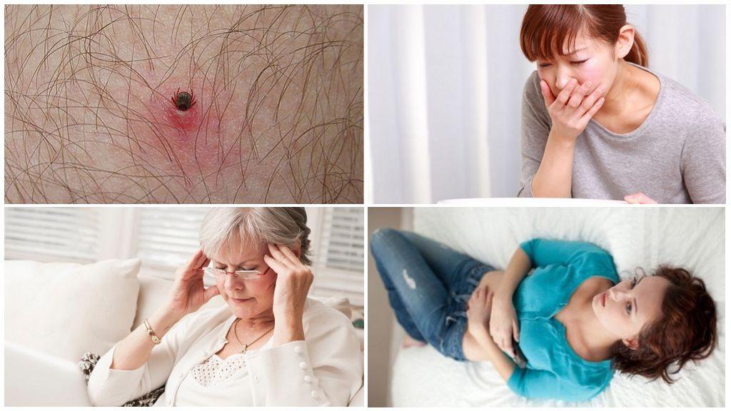 Initial signs of tick-borne diseases