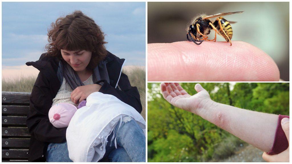 Wasp kumagat sa panahon ng pagbubuntis at pagpapasuso