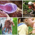 גורם זיהום Giardia